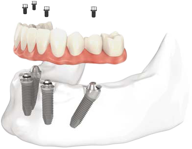 all-on-4-dental-implants-toronto