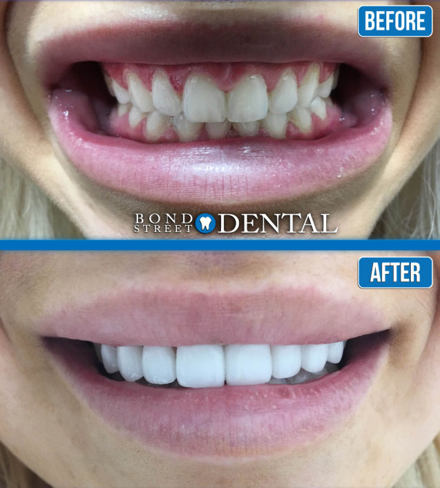 Teeth-Whitening-Before-and-After-Pictures